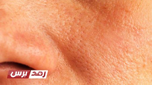 طريقة ووصفات التخلص من اتساع مسام الوجه